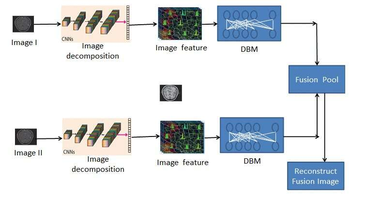 New medical image fusion method draws on deep learning to improve patient outcomes