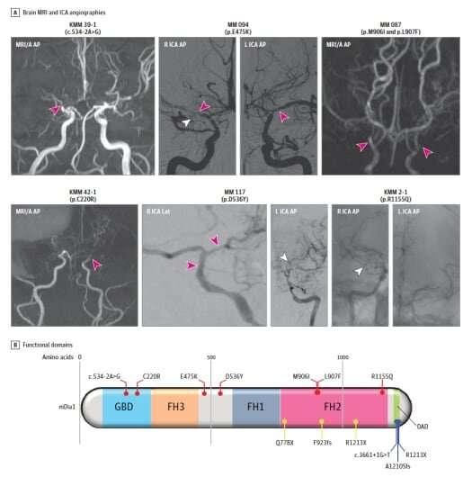 New study identifies key gene correlated with pediatric stroke