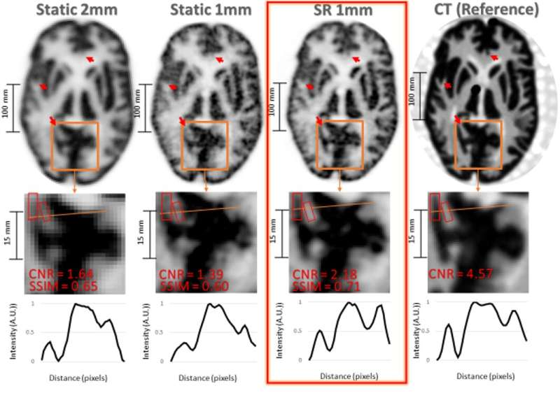 New super-resolution technique allows for more detailed brain imaging