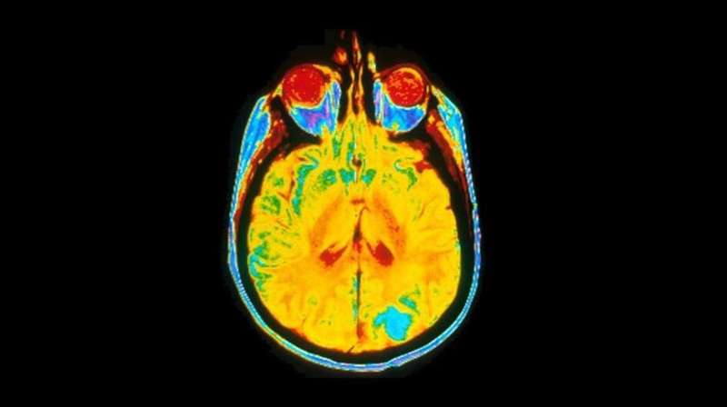 New cancer scan could guide brain surgery