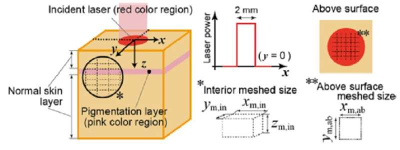 New model simulates the temperature rise of laser-heated skin