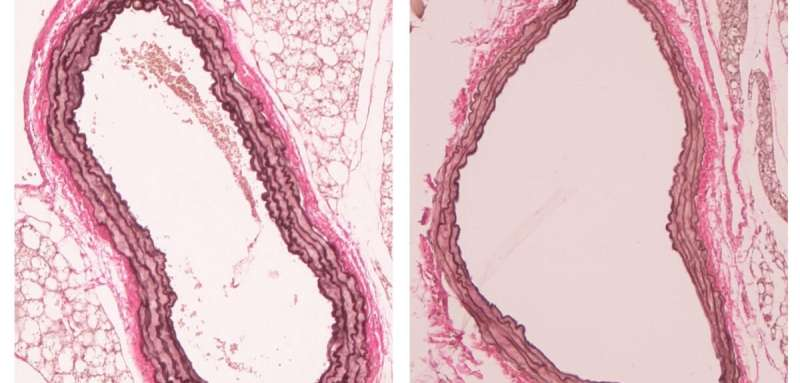 New target identified to develop treatment for abdominal aortic aneurysm