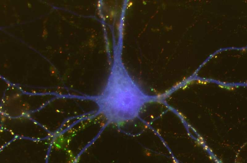 Non-neuronal cells drive sex differences in early brain development
