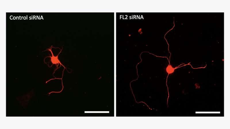 Novel drug regenerates erectile nerves damaged by prostate surgery