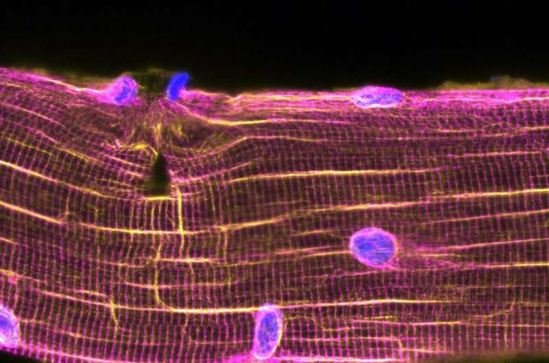 Nuclei on the move for muscle self-repair