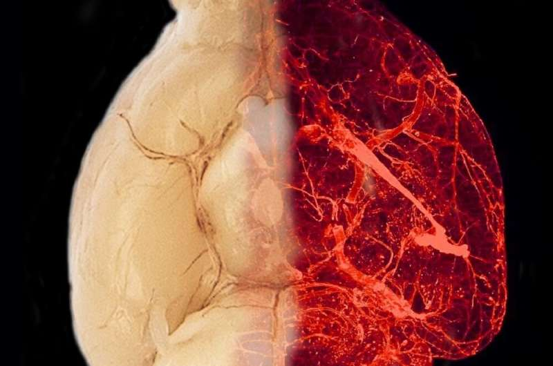 Obesity and hypertension: Researchers discover novel mechanisms