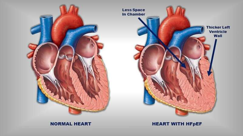 Obesity weakens heart muscle in patients with a common type of heart failure