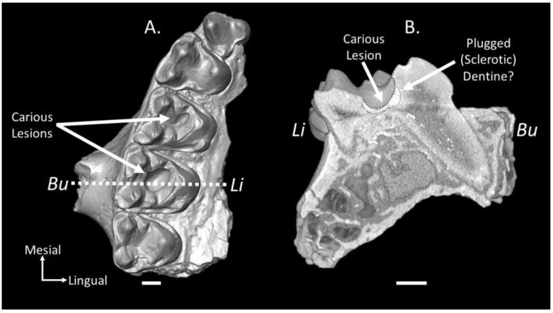 Oldest known mammal cavities discovered in 55-million-year-old fossils suggests a sweet tooth for fruit