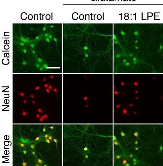Oleoyl-LPE exerts neurite stimulation and neuroprotection