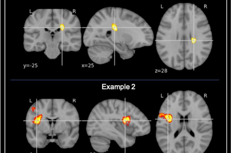 Patients who develop cognitive impairment had changes in the brain before their stroke