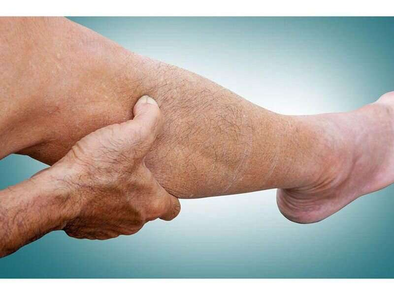Peripheral artery disease: common, and here's how to spot it