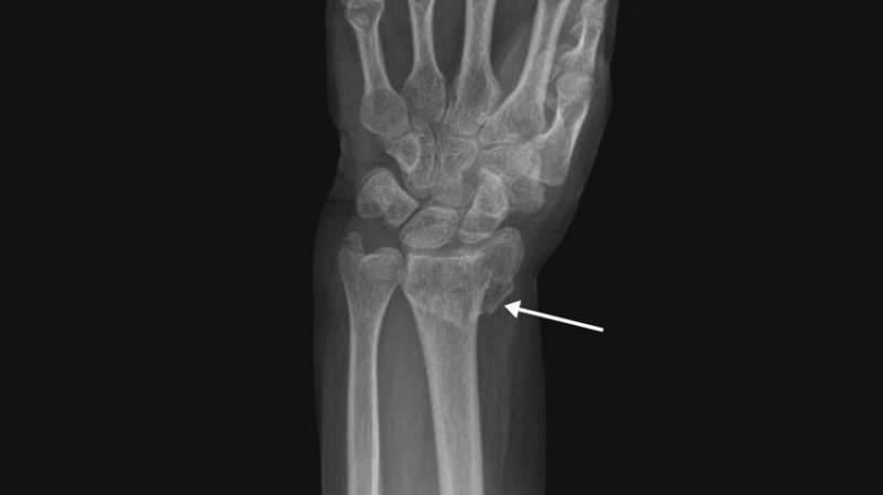 Personalized medicine, not X-rays, should guide forearm fracture treatment in older adults