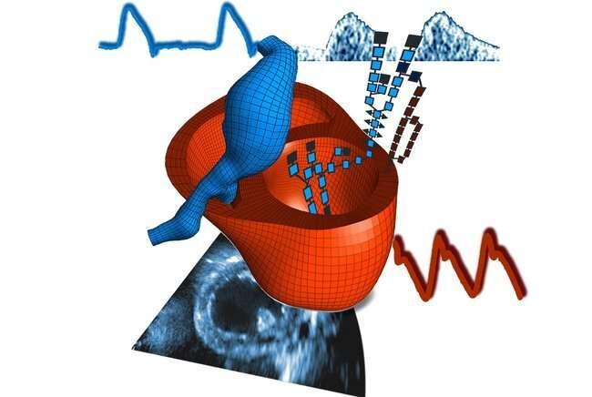 Personalizing cardiac medicine with models