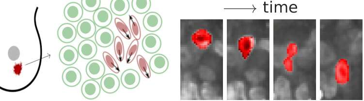 Physics of tumours: Cancer cells become fluidised and squeeze through tissue
