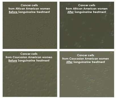 Plant compound shows promise against triple-negative breast cancer