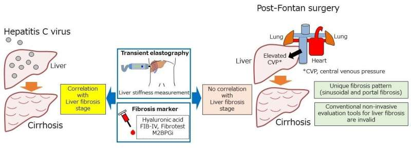 Post-Fontan liver fibrosis goes under the radar
