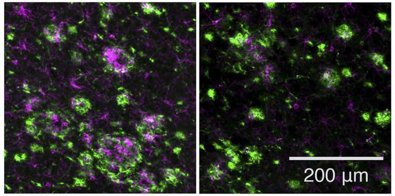 Potential drug for Alzheimer's disease prevention found safe and effective in animals