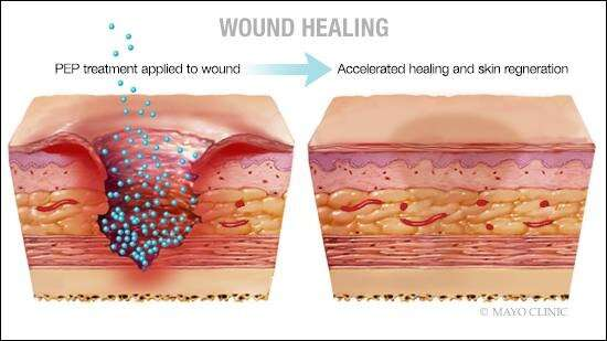 Preclinical discovery triggers wound healing, skin regeneration