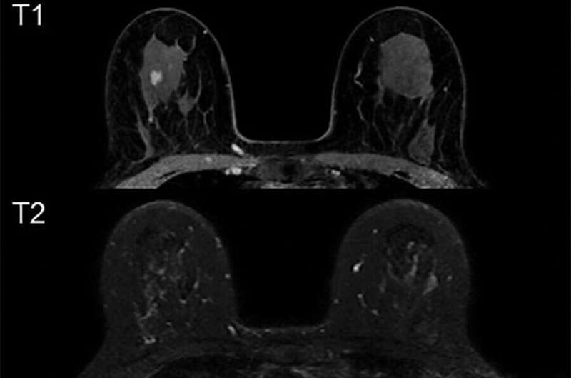 Prediction models may reduce false-positives in MRI breast cancer screening