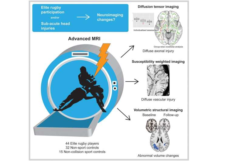 Professional rugby may be associated with changes in brain structure