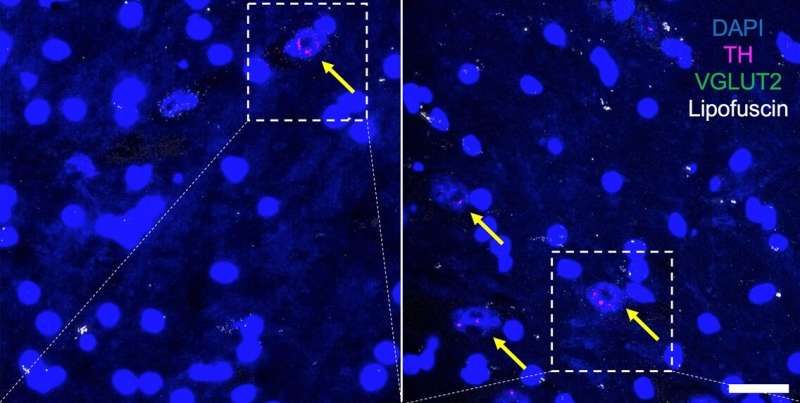Protein linked to sex differences in age-related dopamine neuron loss
