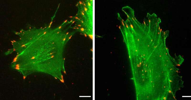 Protein's 'silent code' affects how cells move