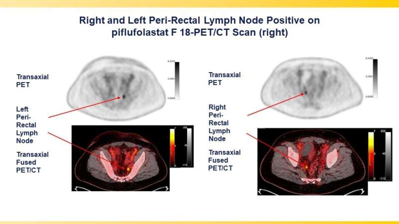 PSMA-targeted radiotracer pinpoints metastatic prostate cancer across anatomic regions