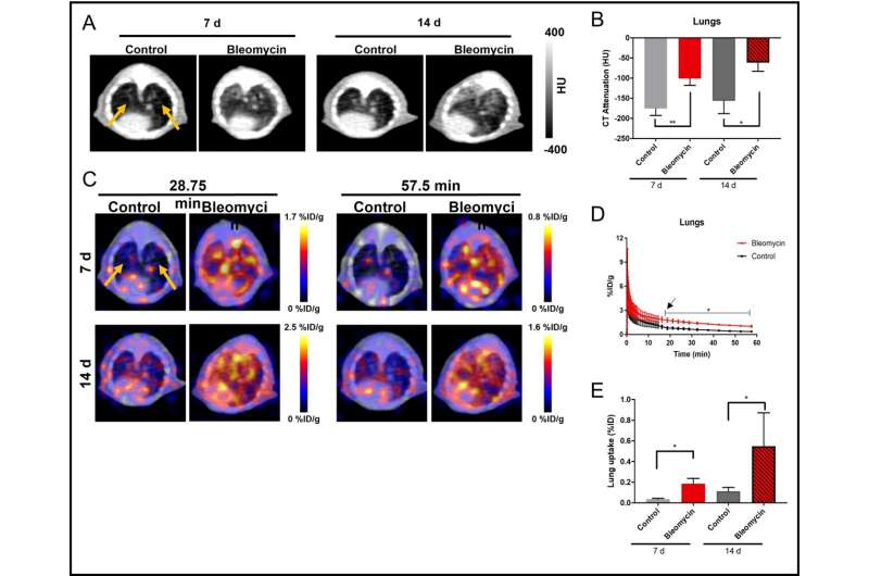 Radiotracer effective for detection and assessment of lung fibrosis