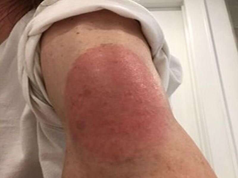 Rashes can occur after COVID vaccine, but dermatologists say 'Don't worry'