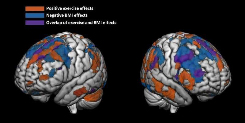 Regular physical activity linked to more 'fit' preteen brains
