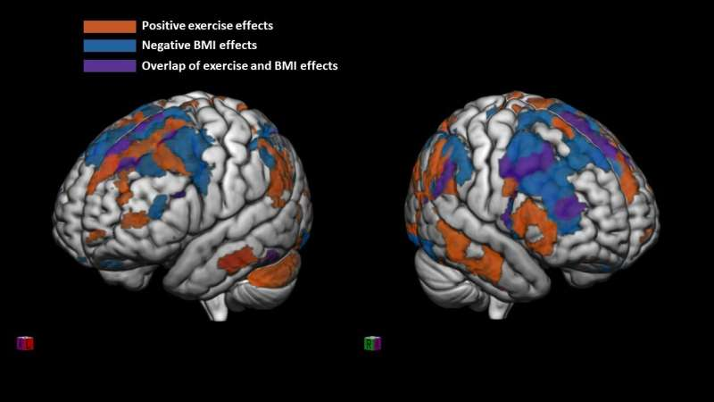 Regular physical activity linked to better organized preteen brains