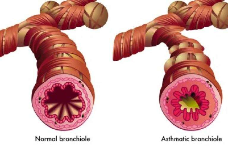 Release of serotonin from mast cells contribute to airway hyperresposivness in asthma