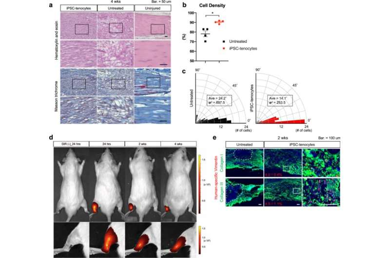 Repairing tendon injuries with stem cells
