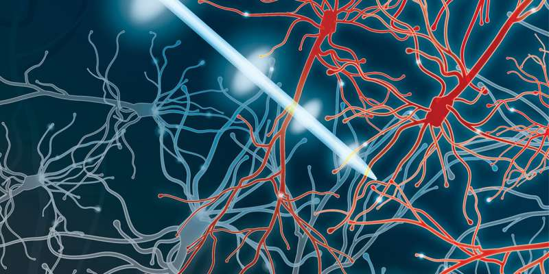 Research shows promising results for Parkinson's disease treatment
