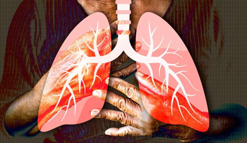 Researchers create cellular blueprint of healthy lungs