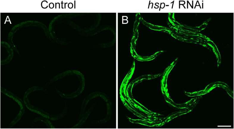 Researchers deepen understanding of cellular stress responses