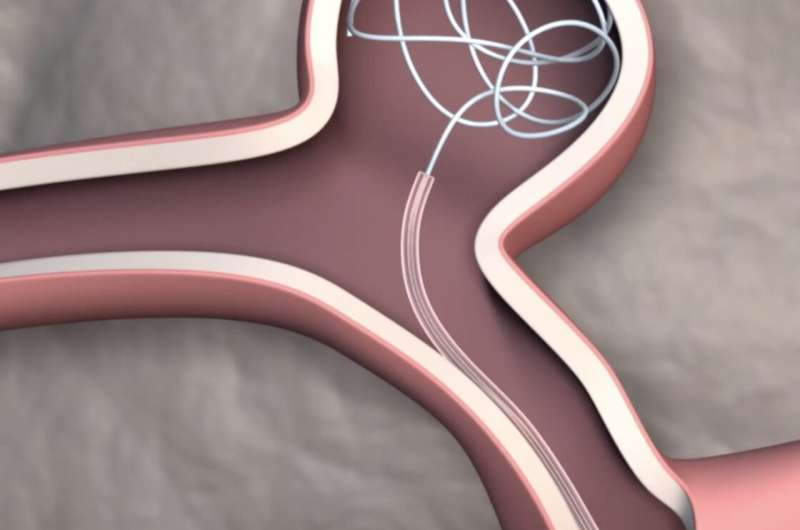 Researchers develop first steerable catheter for brain surgery