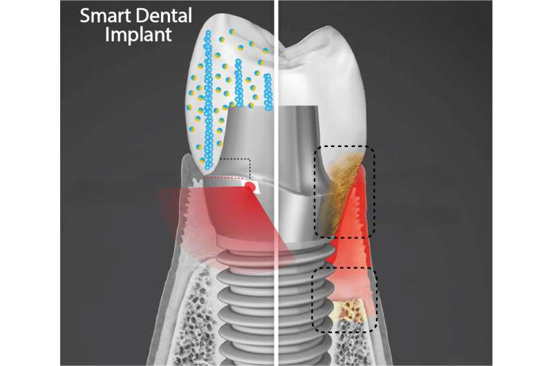 Researchers developing smart dental implants that resist bacterial growth, generate their own electricity