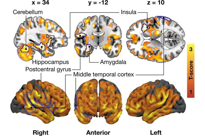 Researchers discover connection between brain's opioid system and eating behaviour