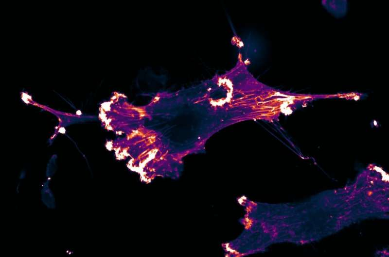 Researchers identify cell communication pathway that controls cell growth and survival