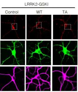 Researchers show how protein clogs in cellular entrances cause Parkinson's disease