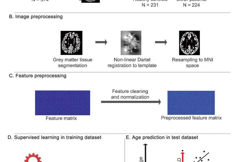Researchers use AI to track cognitive deviation in aging brains