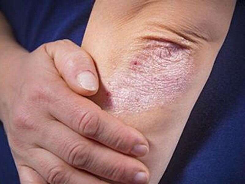 Risk for psoriasis increased for cancer survivors
