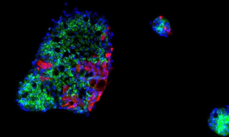 SARS-CoV-2 curtails immune response in the gut