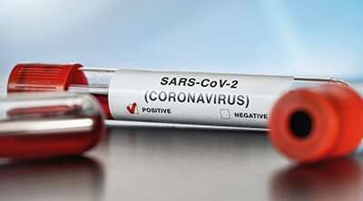 SARS-CoV-2 protease cuts human proteins; possible link to COVID-19 symptoms