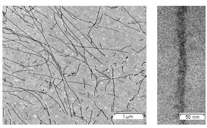 Scientists find a way to detect the spectral signals of amyloid fibrils