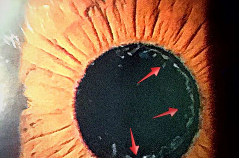 Scientists find gene mutation linked to exfoliation syndrome,most common cause of glaucoma