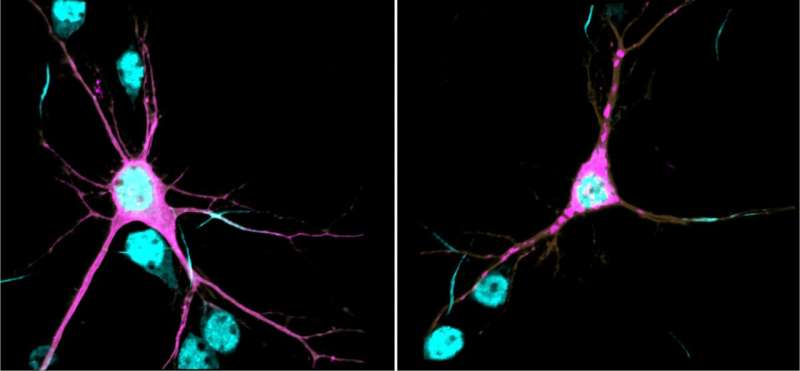 Scientists find genetic cause, underlying mechanisms of new neurodevelopmental syndrome