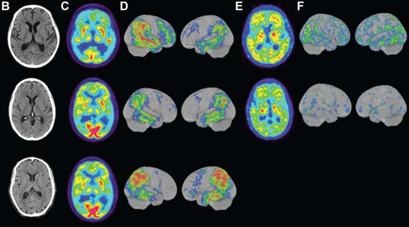 Scientists in Sweden discover a rare, aggressive form of Alzheimer's that begins in the early 40s