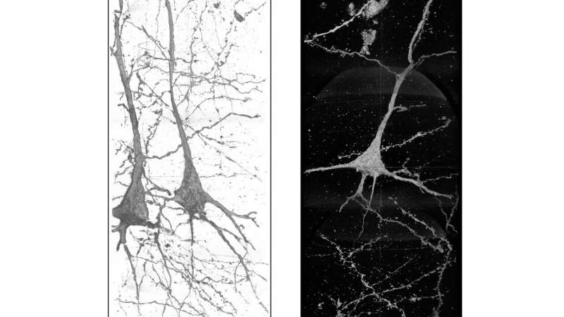 Seeing schizophrenia: X-rays shed light on neural differences, point toward treatment